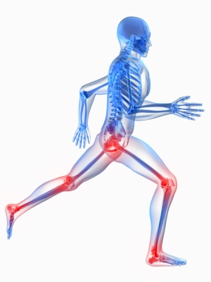 Rheumatoid Arthritis (Autoimmune Joint Lining Inflammation)